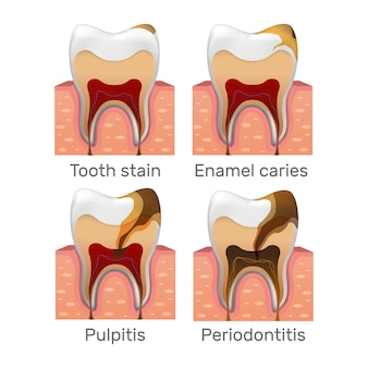 Étapes de la carie dentaire