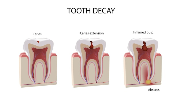 Étapes des dommages aux dents, illustration réaliste