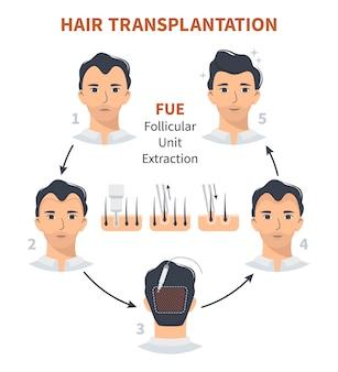 Étapes de la greffe de cheveux extraction d'unité folliculaire fue