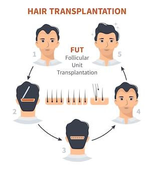 Étapes de la greffe de cheveux unité folliculaire fut
