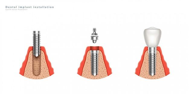Étapes d'installation des implants dentaires. illustration réaliste 3d.