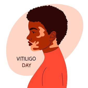 Femme afro-américaine avec vitiligo.girl de profil. style de bande dessinée