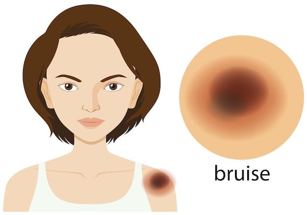 Femme avec ecchymose sur la peau