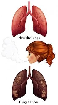 Femmes fumant avec des poumons sains et cancéreux