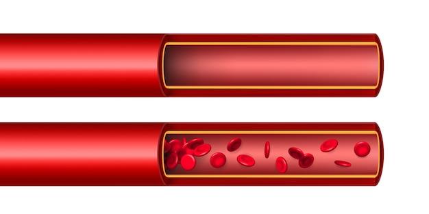 Flux de globules rouges d'artère, vaisseau.