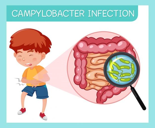 Garçon ayant une infection à campylobacter
