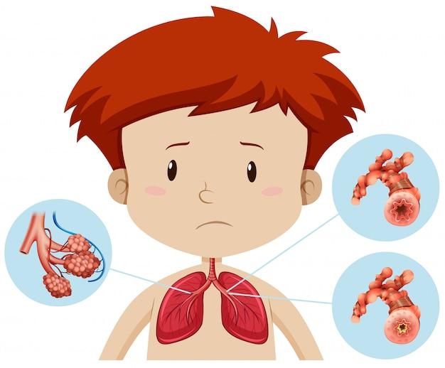 Un garçon avec une bronchite