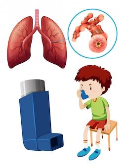 Garçon avec des poumons malsains