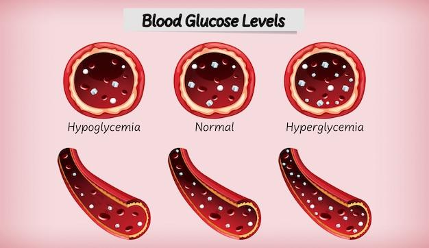 Glycémie médicale