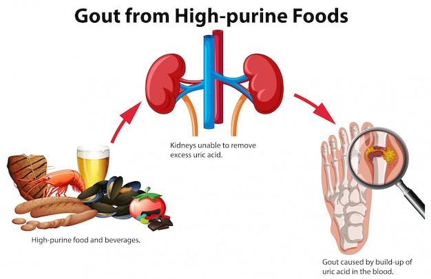 Goutte d'aliments riches en purines