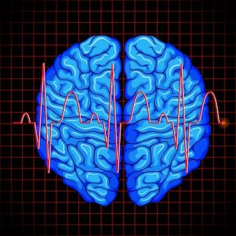 Graphique du cerveau humain et du cerveau sur les grilles