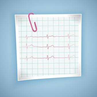 Graphique de pouls cardiaque. battement de coeur d'électrocardiogramme