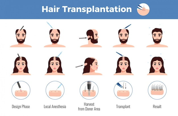 Greffe de cheveux pour hommes et femmes avec stades d'opération infographie sur blanc