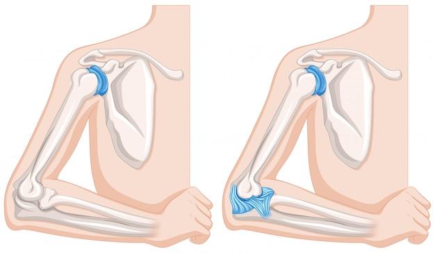 Gros plan du diagramme des articulations du coude humain