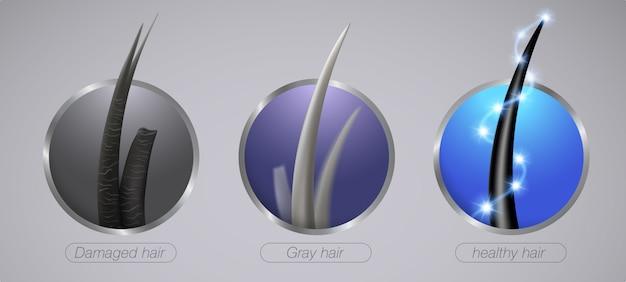 Gros plan de l'état des cheveux forts cheveux endommagés et gris style d'icône réaliste.