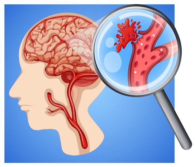 Homme avec de petits accidents vasculaires cérébraux