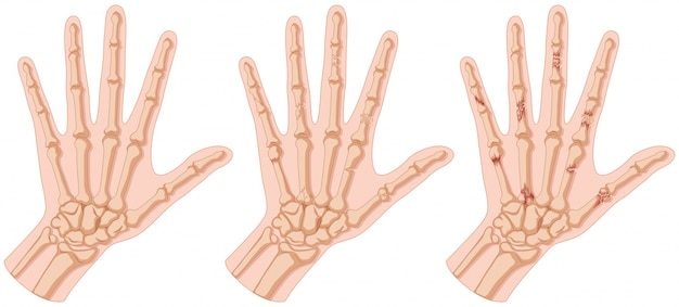 Human hands with fracture osseuse illustration
