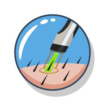 Illustration de dessin animé de suppression de cheveux au laser isolée sur fond blanc.
