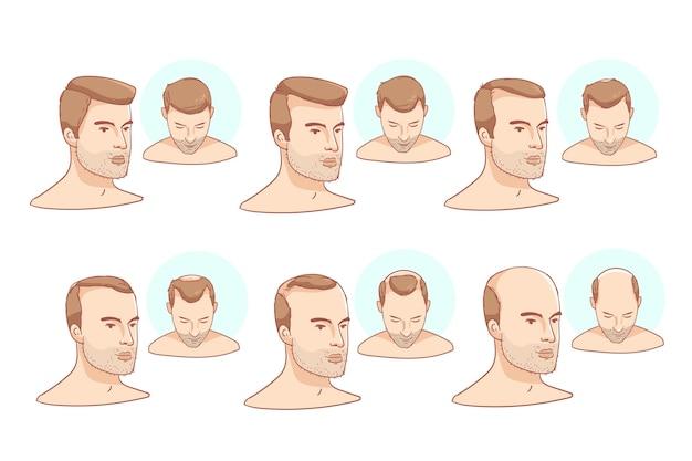Illustration des étapes de la perte de cheveux dessinés à la main