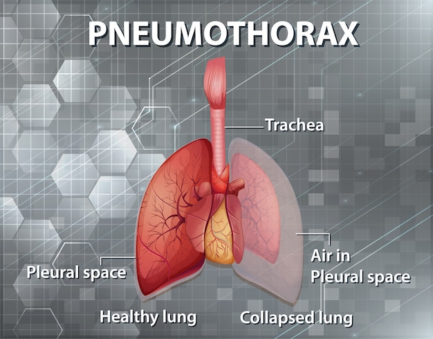 Illustration informative du pneumothorax