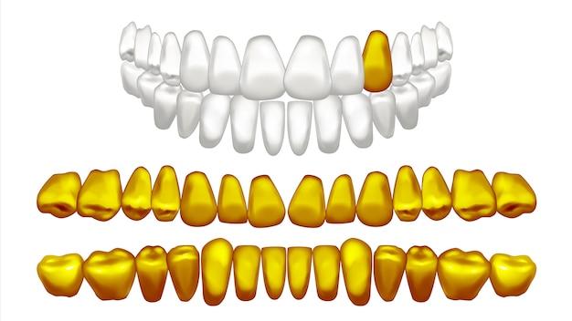 Illustration de jeu de dents d'or