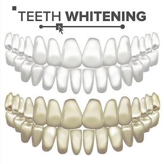 Illustration de jeu de dents