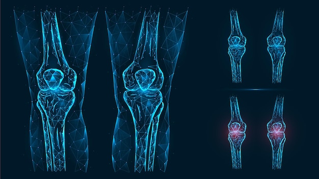 Illustration polygonale abstraite de l'anatomie du genou humain. maladie, douleur et inflammation des articulations du genou.
