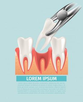 Illustration réaliste de chirurgie dentaire en vecteur 3d