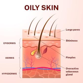 Illustration réaliste de couches de peau grasse