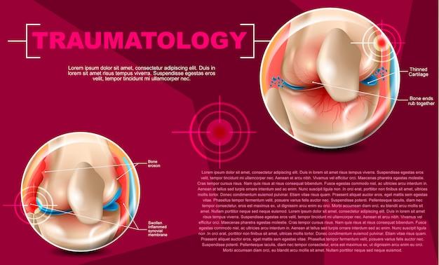 Illustration réaliste médecine de traumatologie en 3d