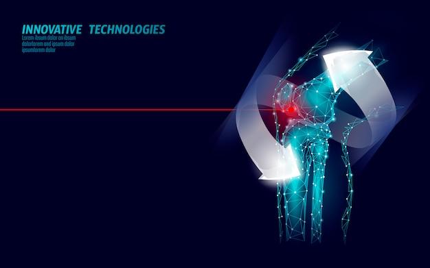 Illustration vectorielle de l'articulation du genou humain modèle 3d.