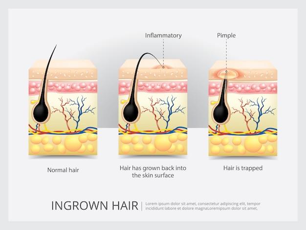 Illustration vectorielle de structure des cheveux incarnés