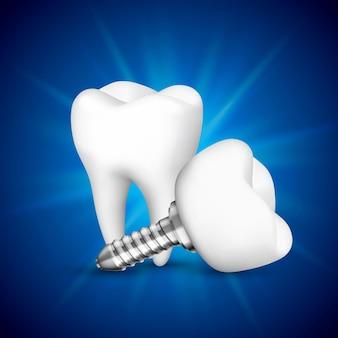 Implant dentaire sur fond bleu. illustration vectorielle