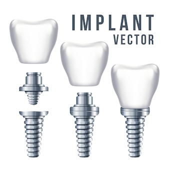 Implant dentaire et illustration des pièces. implantation en dentisterie et soins dentaires