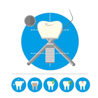 Implant dentaire isolé, vecteur