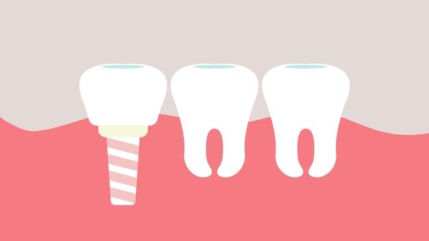 Implants dentaires hygiène buccale.