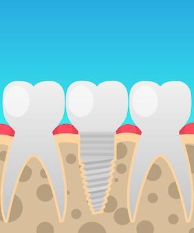 Implants dentaires, remplacement de dent