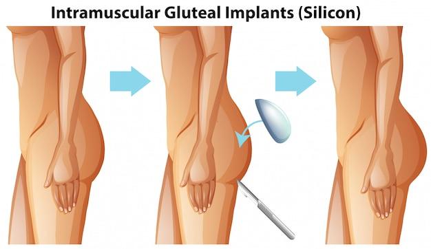 Implants fessiers intramusculaires sur fond blanc