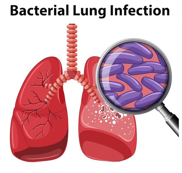 Une infection pulmonaire bactérienne sur fond blanc