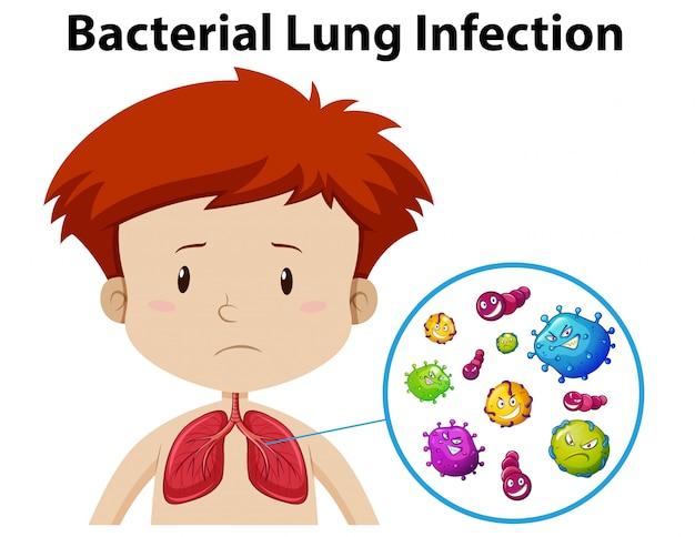 Une infection pulmonaire masculine de garçon