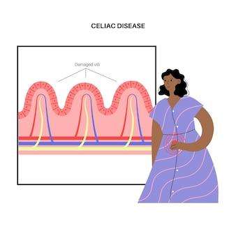 Inflammation de la maladie cœliaque. des villosités intestinales endommagées dans la surface des parois intestinales.