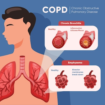 Infographie de copd dessiné à la main avec des illustrations