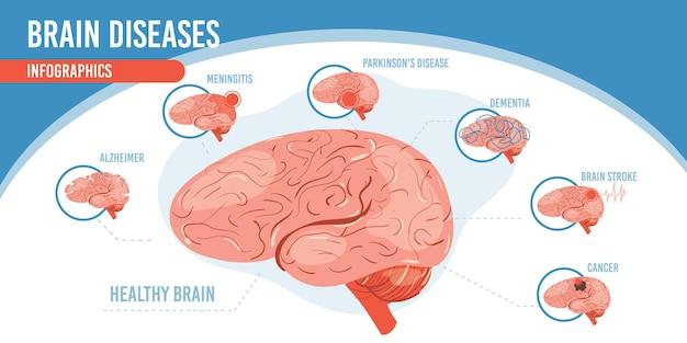 Infographie de dessin animé plat, cerveau sain
