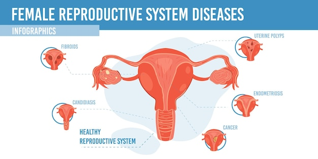Infographie de dessin animé plat, système reproducteur féminin sain
