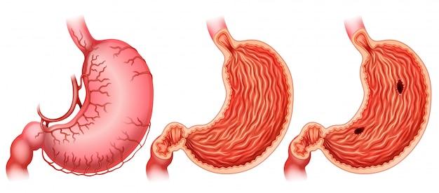 Infographie de l'estomac