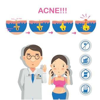 Infographie de formation d'acné