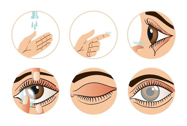 Infographie de lentilles de contact.