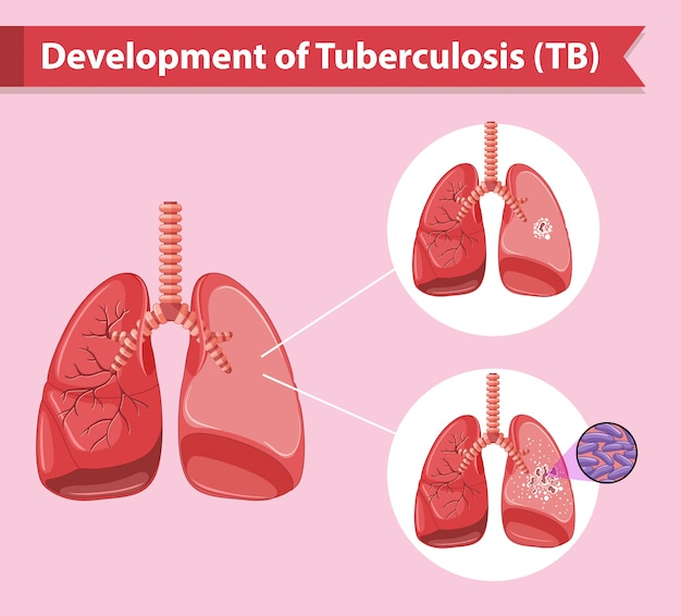 Infographie médicale scientifique de la tuberculose