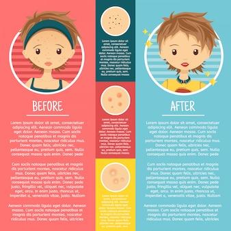 Infographie sur la peau à problèmes avec des illustrations fille avec des boutons, des pores, de l'acné avant et après.