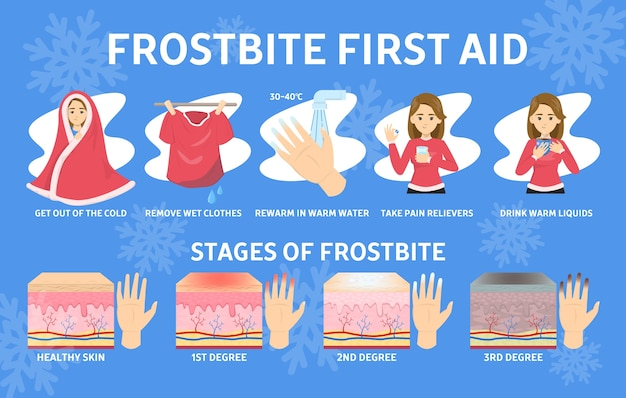 Infographie de premiers soins de gelure. hypothermie en hiver froid. dommages aux doigts, stades de gelure. illustration